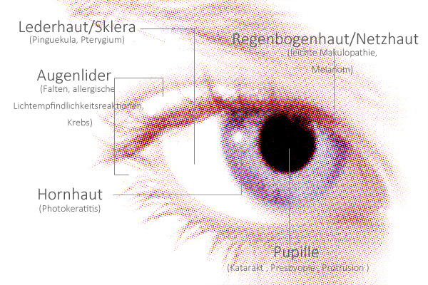 Augenschäden durch Sonnenlicht
